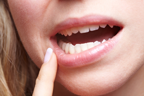 Hidden tooth infections increase heart disease risk by almost three times