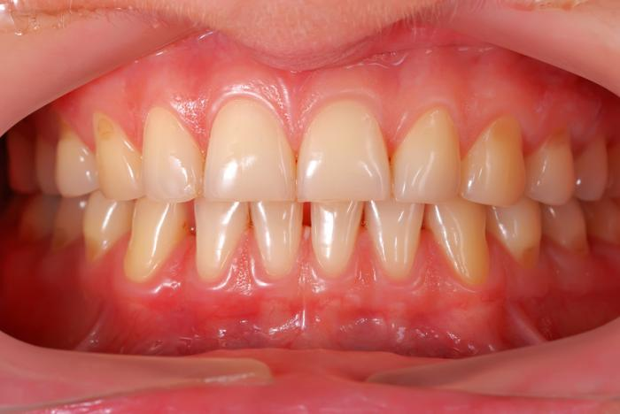 Causes and Treatment Options of Receding Gums